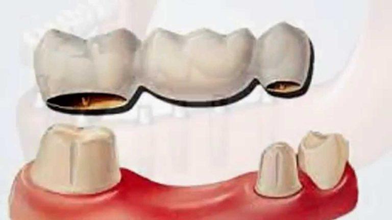 Коронки на зубы краснодар