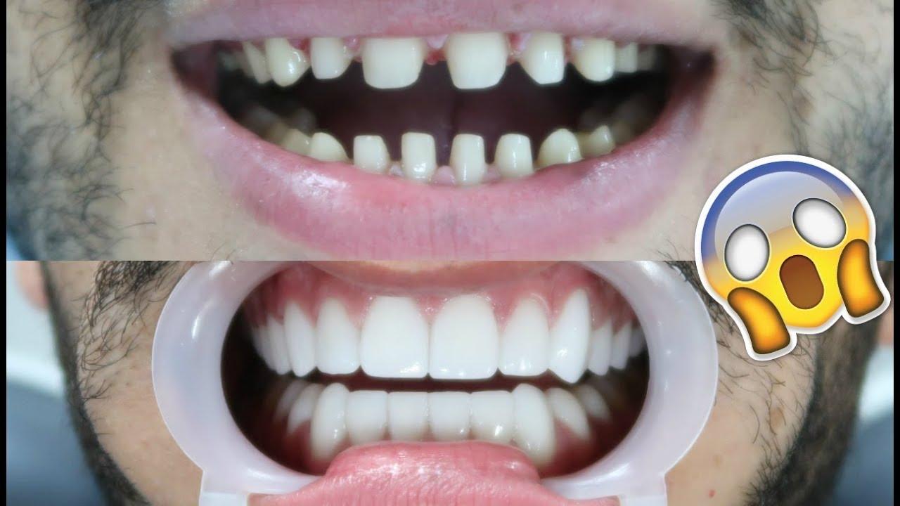photos shaved teeth for porceline veneers