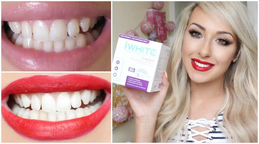 How I Whitened My Teeth at Home using iWhite  Dramaticmac
