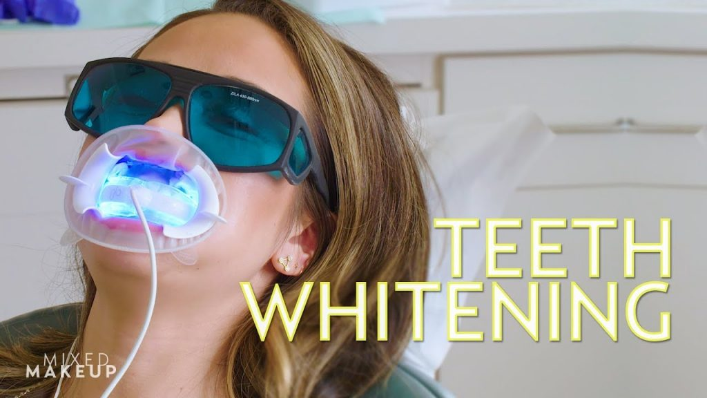 The Best Teeth Whitening in Los Angeles!   The SASS with Susan and Sharzad