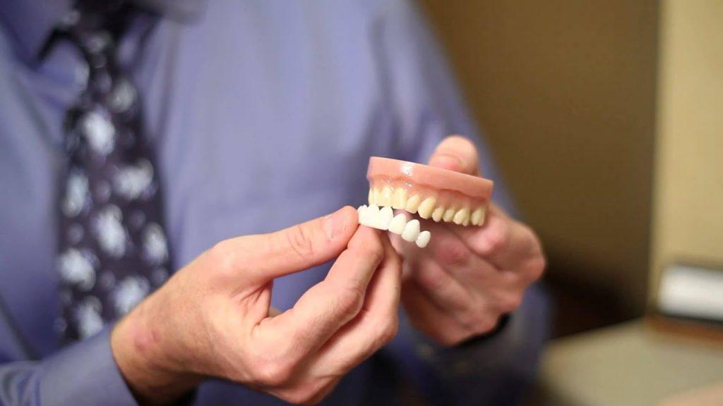 How to Whiten Yellowed False Teeth : Dental Hygiene