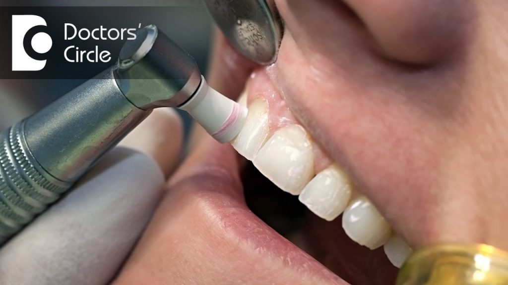 How to get rid of yellow stains on teeth in smokers? – Dr. Aniruddha KB