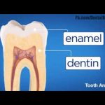 Five stages of Tooth decay