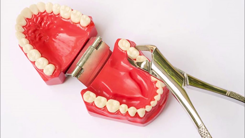 Advanced Dental – Wisdom Tooth Extraction