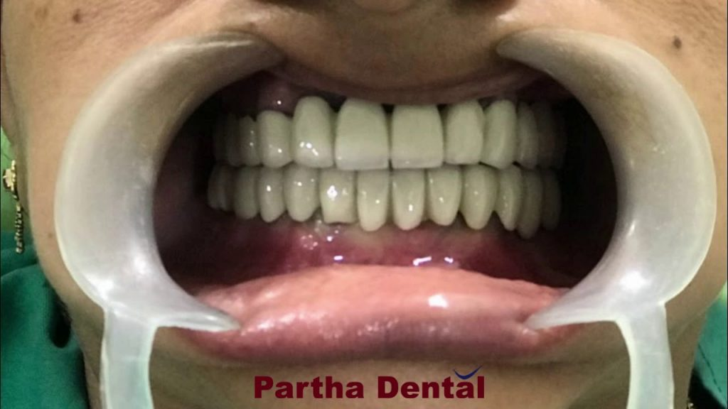 How much does a full mouth dental implants cost? II Partha Dental II