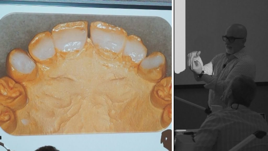 Tips and Tricks on Restoring Worn Dentition