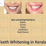 Teeth whitening in kerala