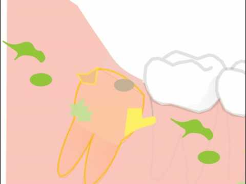 some general problems and risks removing wisdom teeth in an animated film