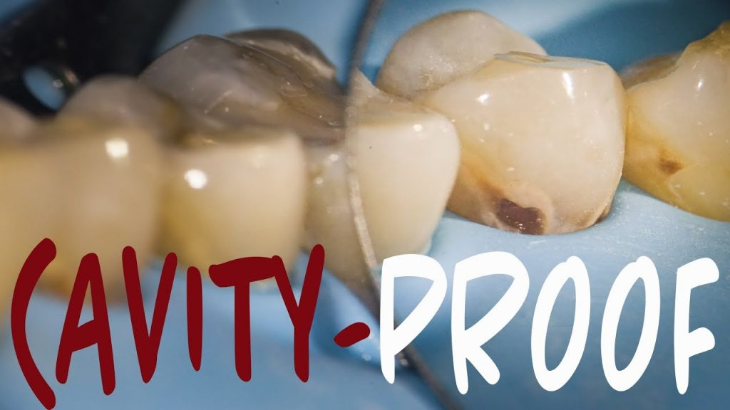 HOW TO PREVENT CAVITIES: Cavity / Tooth Decay Prevention 101