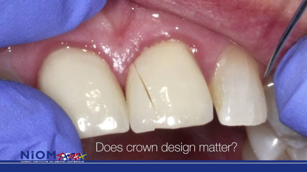 Strength of all ceramic crown is influenced by the margin design