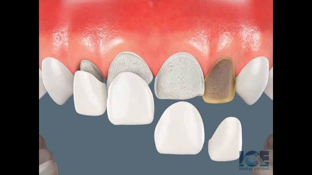Porcelain Veneers Patient Education – Shared by Dr. Davis Periodontist Naples FL Cosmetic Dentistry