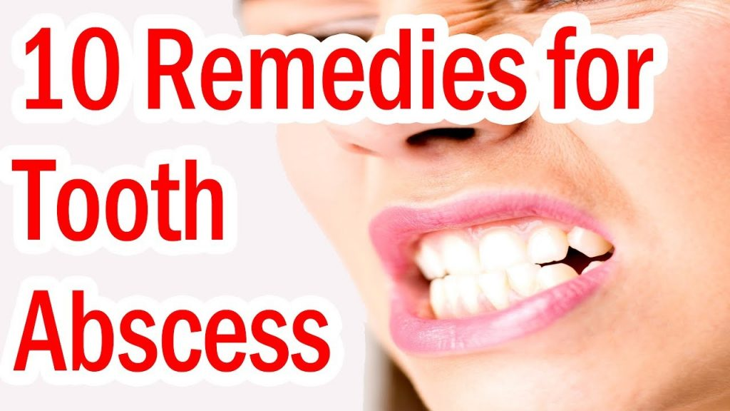 Top 10 Home Remedies for Tooth Abscess
