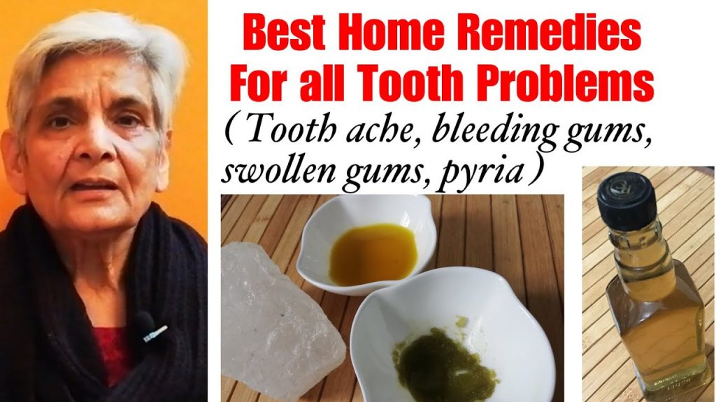 Home remedies for tooth problems, दांतो की हर समस्या से छुटकारा पाने के घरेलू नुस्खे,Tooth ache ?