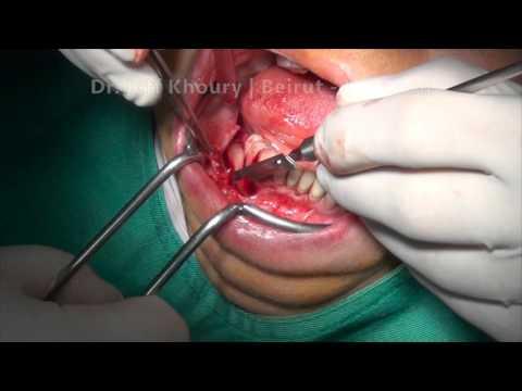 Vertical GBR -Guided Bone Regeneration-dental implants beirut lebanon