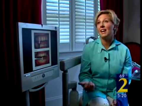 Beware of Internet Teeth Whitening Scam