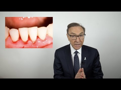 How to Treat Bleeding Gums at Home (2019)