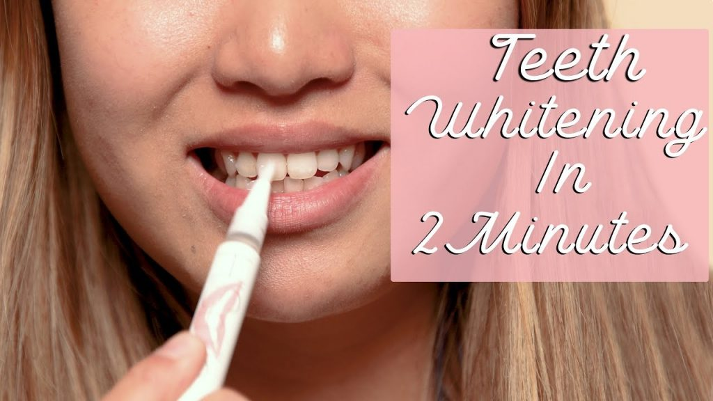TEETH WHITENING IN 2 MINUTES | HOW TO