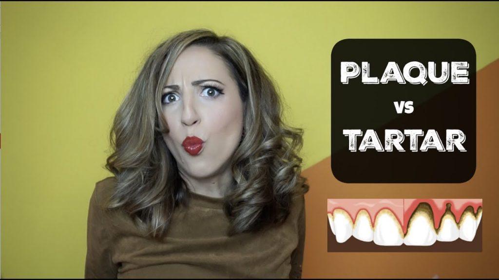 How to remove PLAQUE versus TARTAR