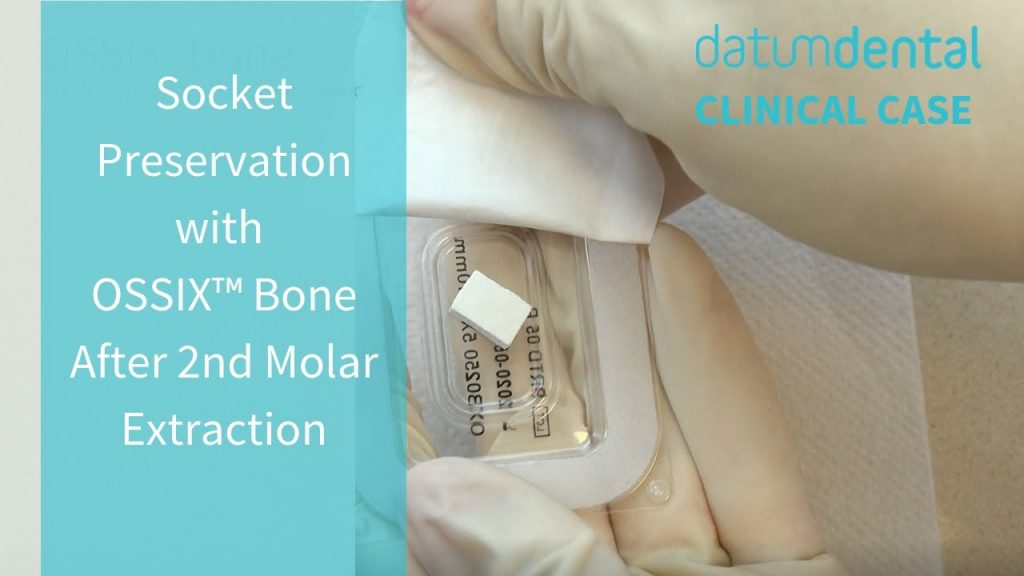 Clinical Video Case Socket Preservation with OSSIX Bone After 2nd Molar Extraction – Zubery