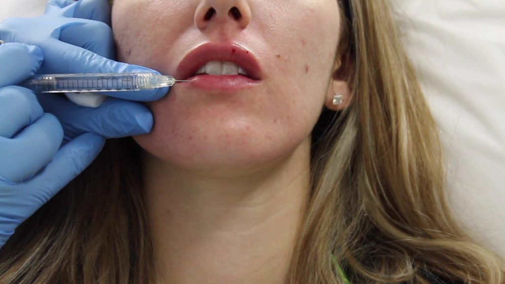 Juvederm lip filler injection by Dr. Shaun Patel in Miami, Florida.