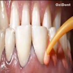 Artistic Dental Treatment