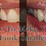 How to Make Your Big Canine Teeth (Fang teeth) Look Smaller