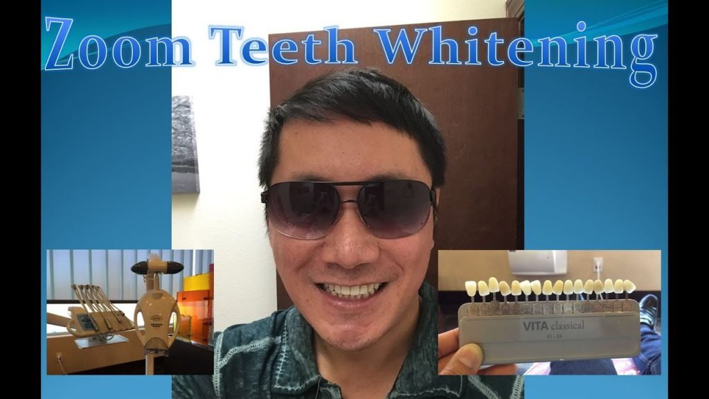 Zoom Teeth Whitening Review (Is it worth it?)