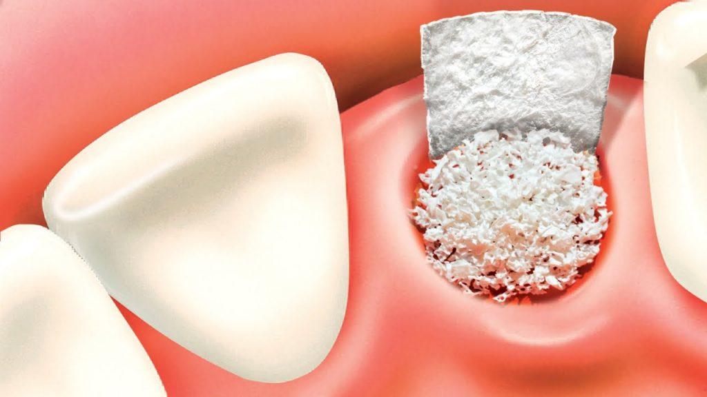 Bone grafting procedure