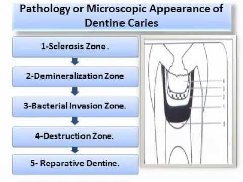 Dental Caries.(Oral Pathology) wmv