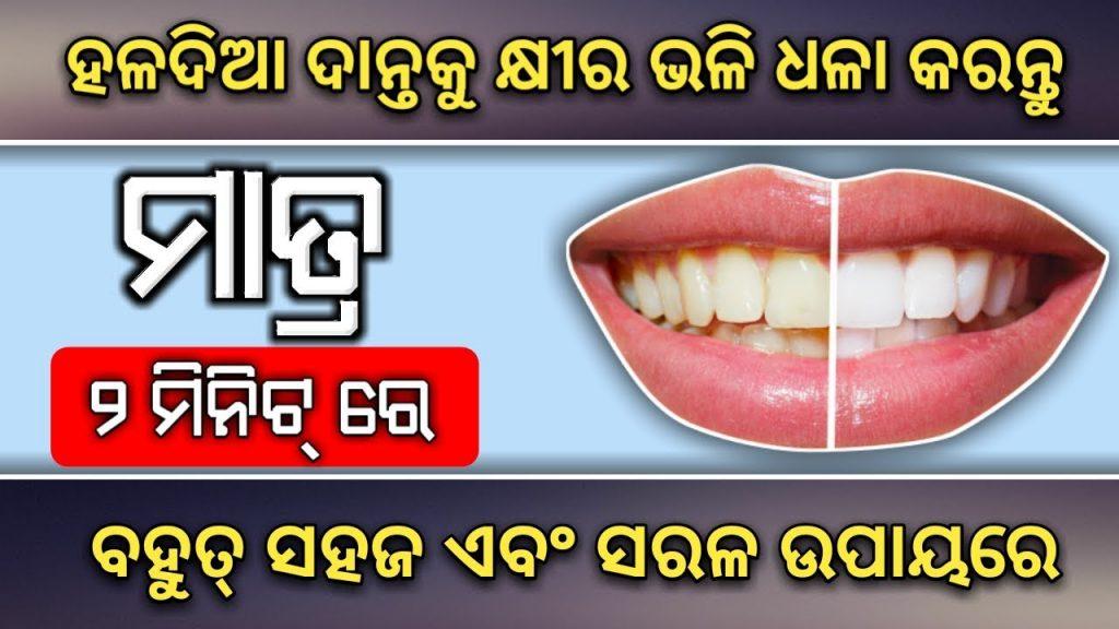 ମାତ୍ର ୨ମିନିଟ୍ ରେ – ହଳଦିଆ ଦାନ୍ତକୁ କ୍ଷୀର ଭଳି ଧଳାକରନ୍ତୁ 100%   teeth whitening at home, Health tips