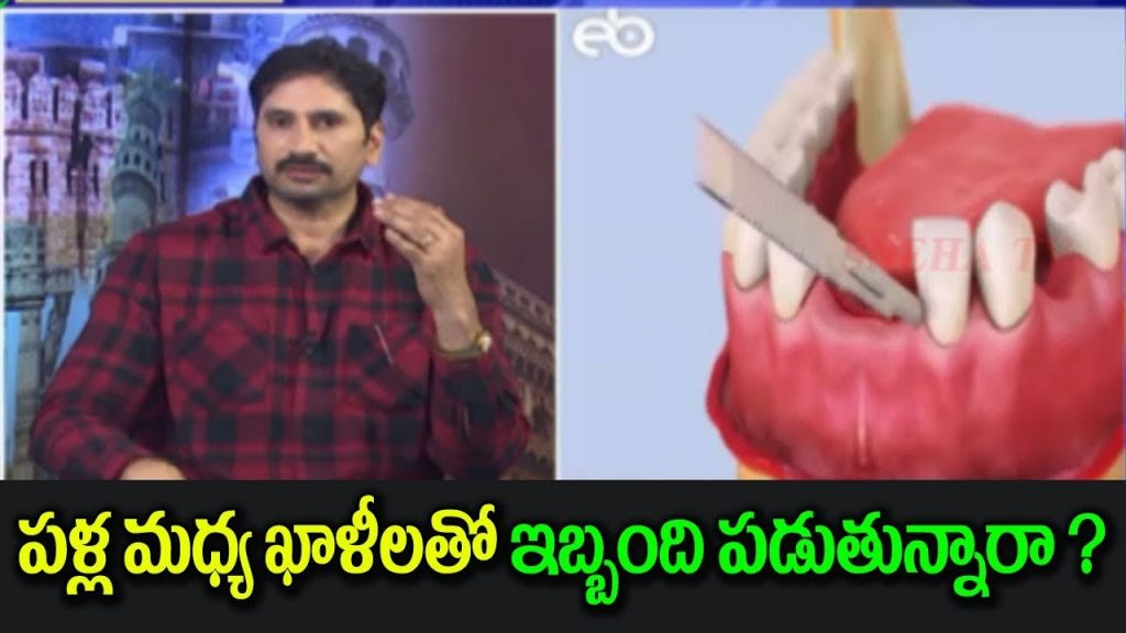 Special Discussion About Teeth structure & Dental Problems | Snehatvtelugu