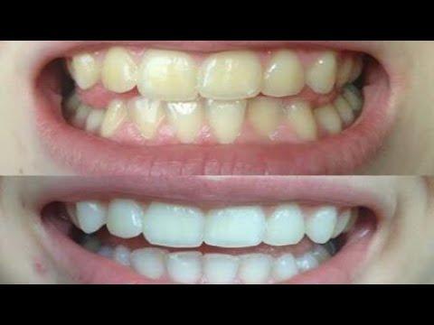 दाँतों के लिए वरदान है ये || Best Product for teeth.