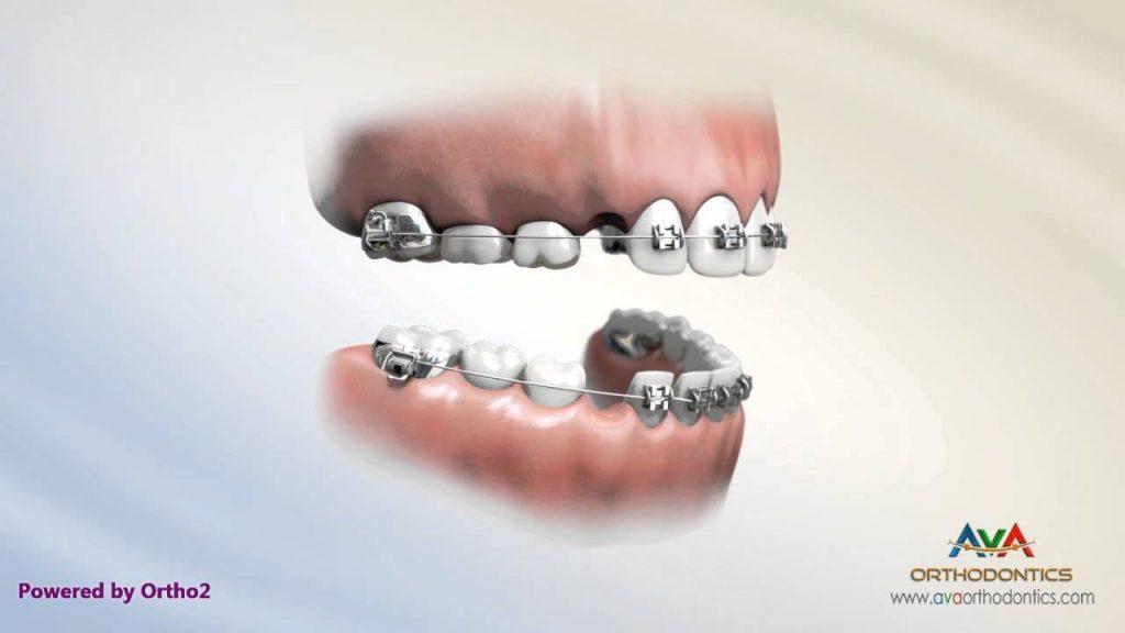 2×4 Braces – Orthodontic Treatment