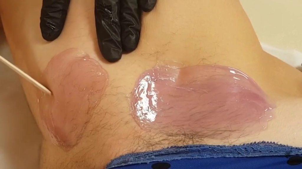 Bikini wax with Opal peelable