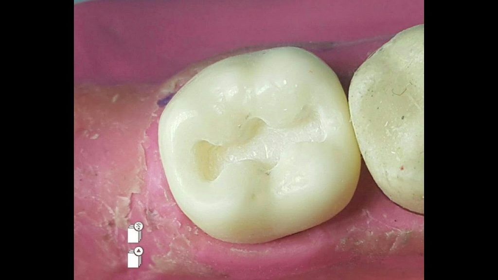 """Class I Cavity preparation for Lower Second Molar """"L7"""""""