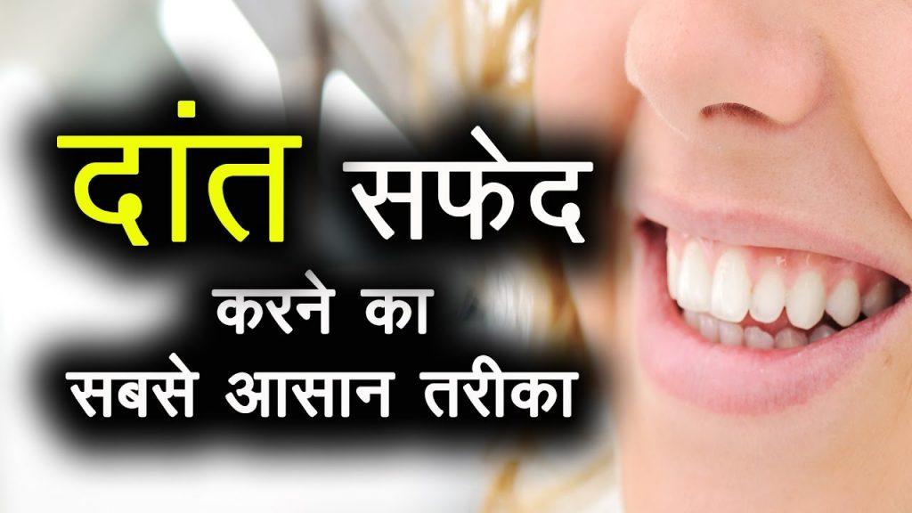 दांत सफ़ेद और सुरक्षित करने का सबसे आसान तरीका । How to whiten teeth at home in Hindi | Pinky Madaan