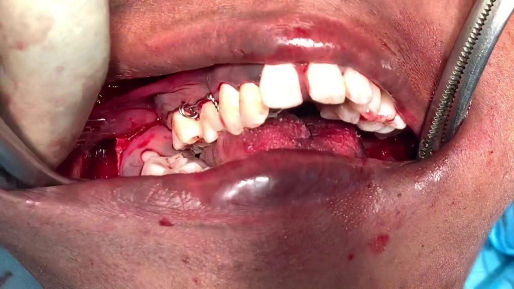 Bijaw Orthognathic Maxillofacial Surgery | Lefort One and Sagittal Split with Genioplasty video
