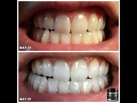 Rawhonest Activated Charcoal Teeth Whitening
