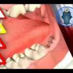 Spodak Dental Group new TV commercial with actual patient testimonial