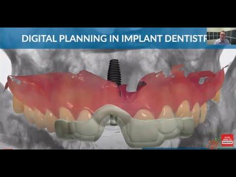 Dental Webinar Series :  Digital Planning in Implant Dentistry by Dr Brian Goodacre