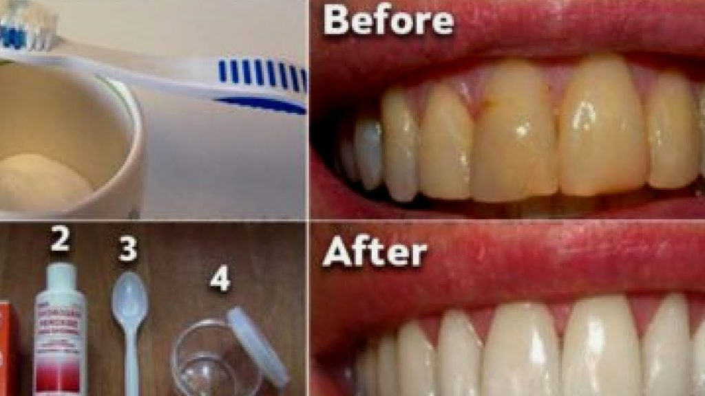 how to get rid of dental plaque